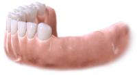 Липсващи четири зъба