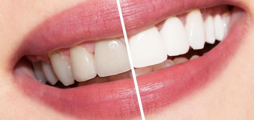 Избелване на зъби